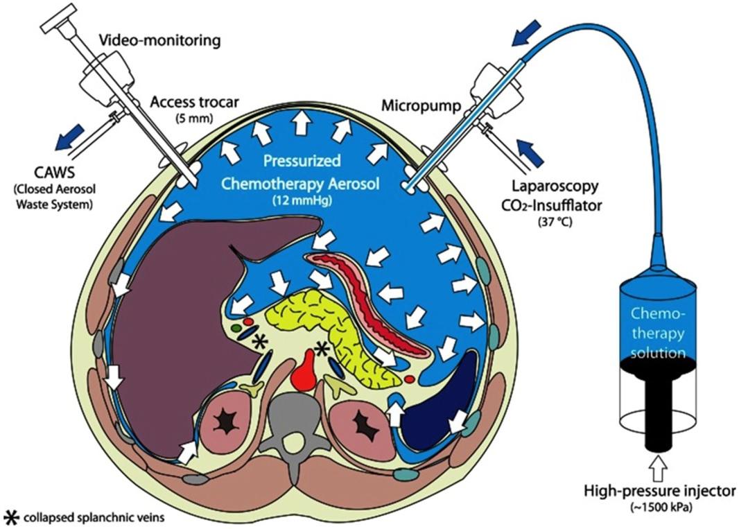 Corso: Nuove frontiere nel trattamento della carcinosi peritoneale: Pressurized IntraPeritoneal Aerosol Chemotherapy -PIPAC